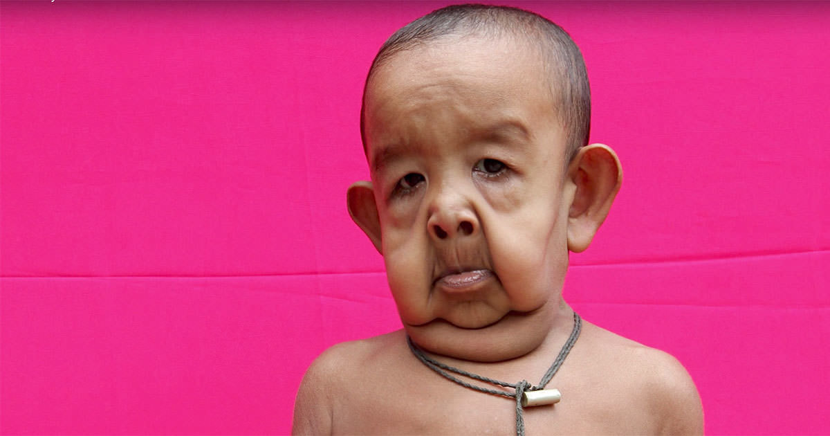 Niño con enfermedad rara.