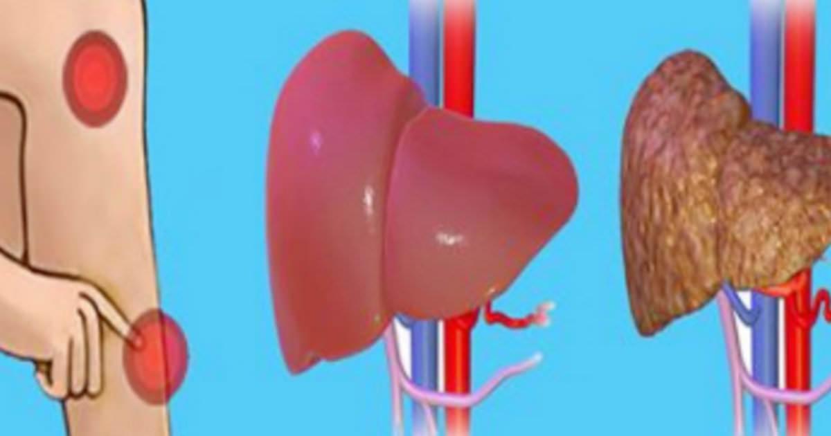 Señales ocultas del cuerpo – así puedes saber si tu hígado está ...