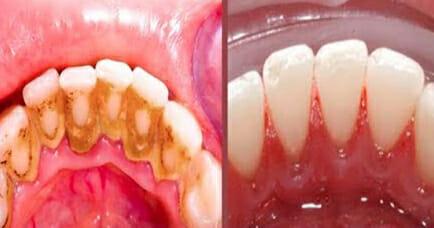 Simple truco casero que hace que te quita la placa dental