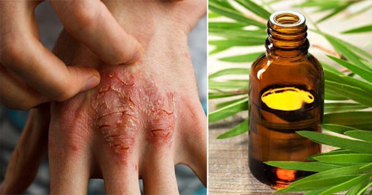 Tea tree oil: 7 fantastic uses you didn't know it had