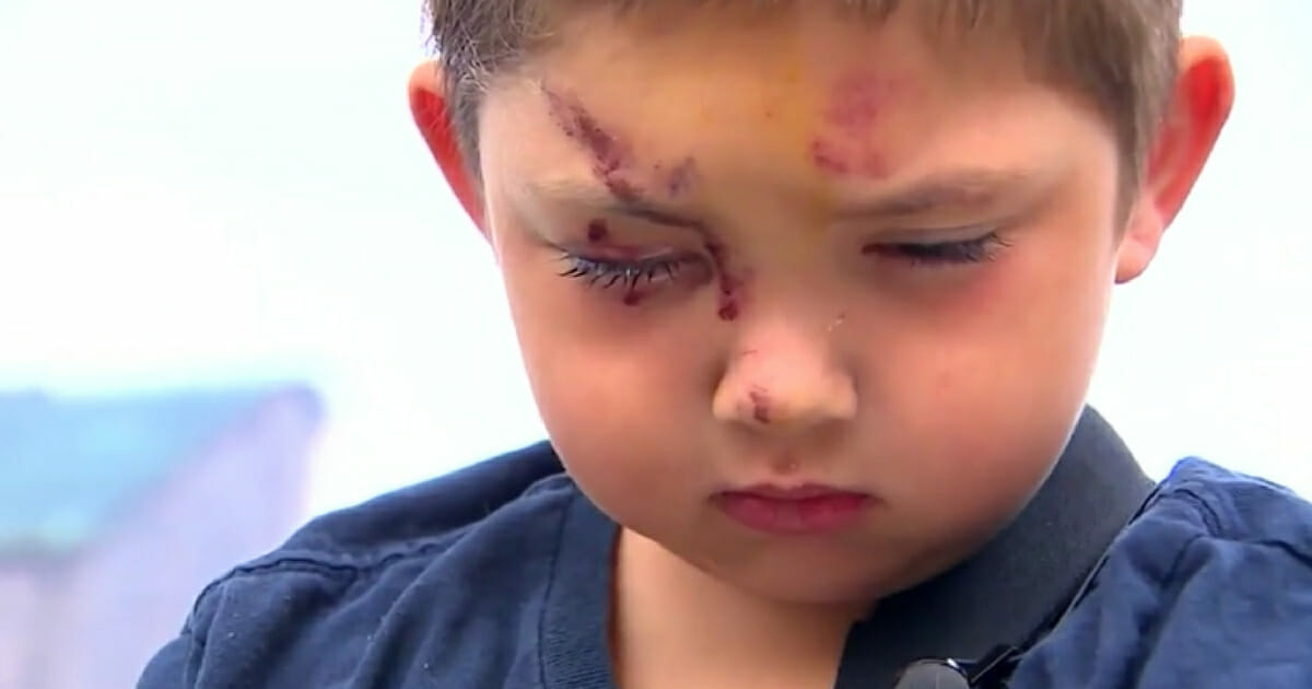 Mom Reveals The Truth After The 6 Year Old Stands Up Against Bullies