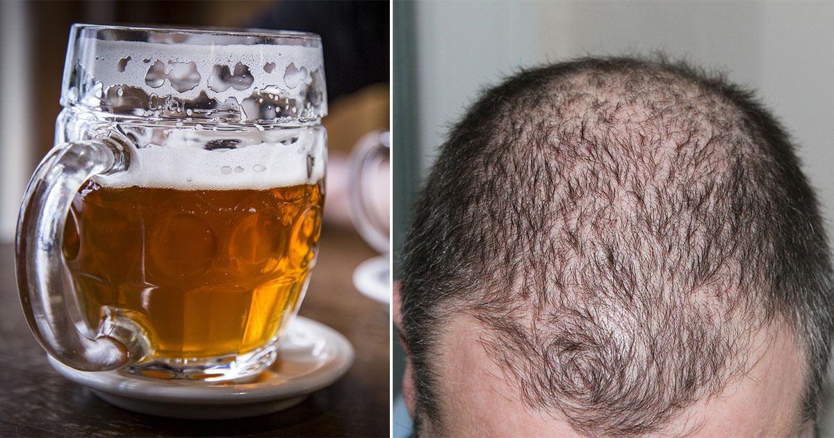 stoppa håravfall naturligt