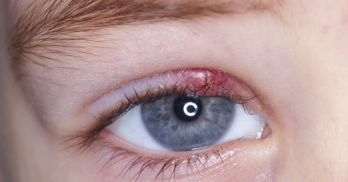 varför får jag vagel i ögat
