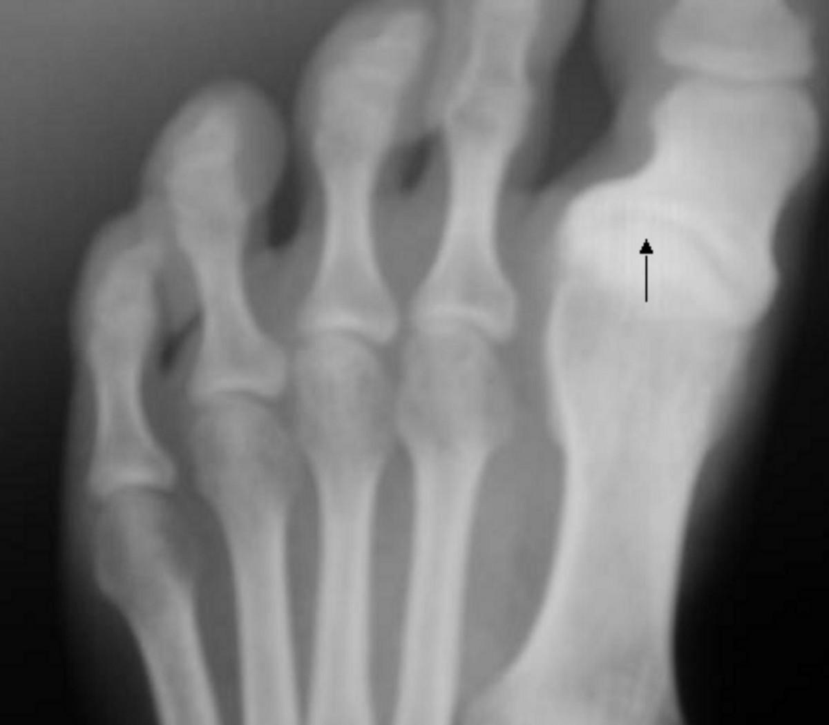 Artros foten