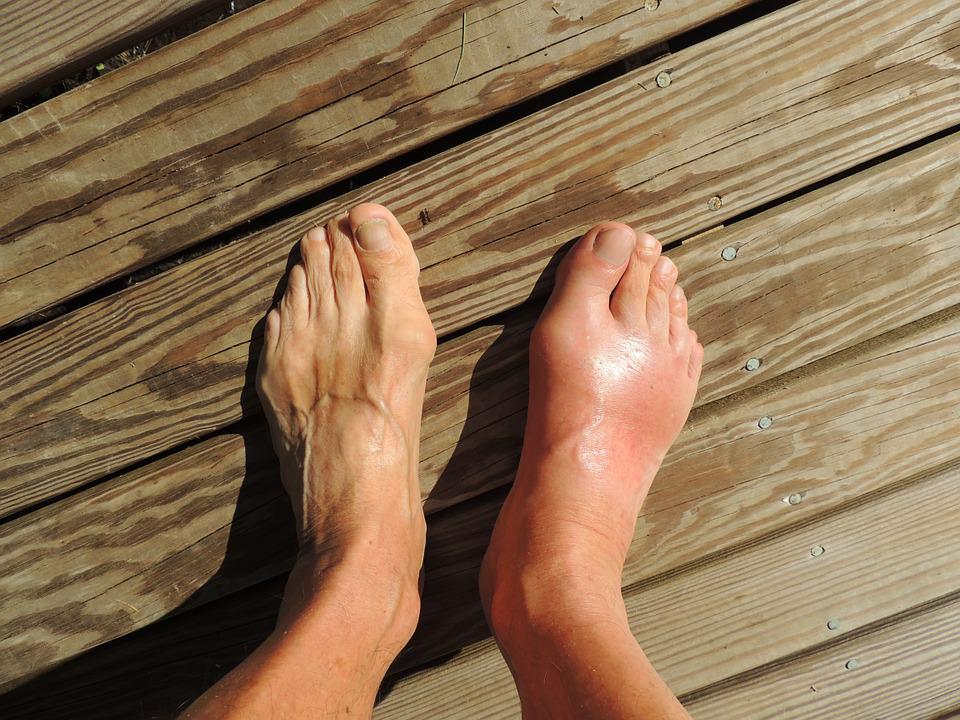 svullna fötter gravid
