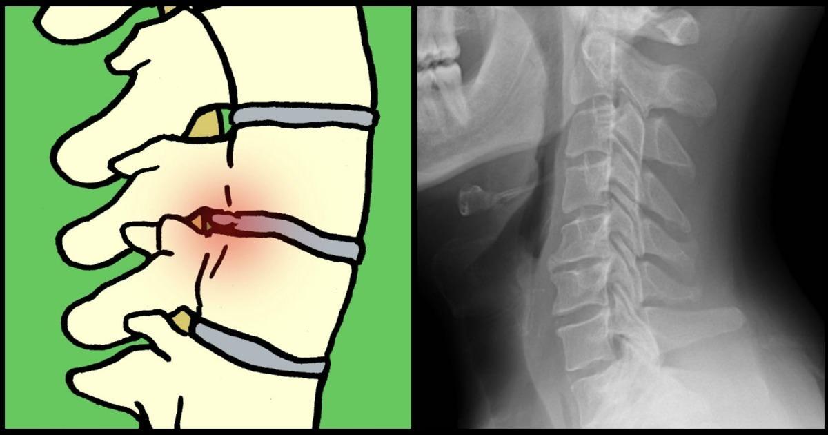 ont i slutet av ryggen