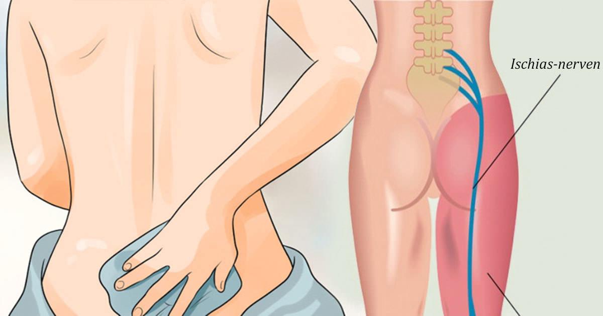 ischias i båda benen