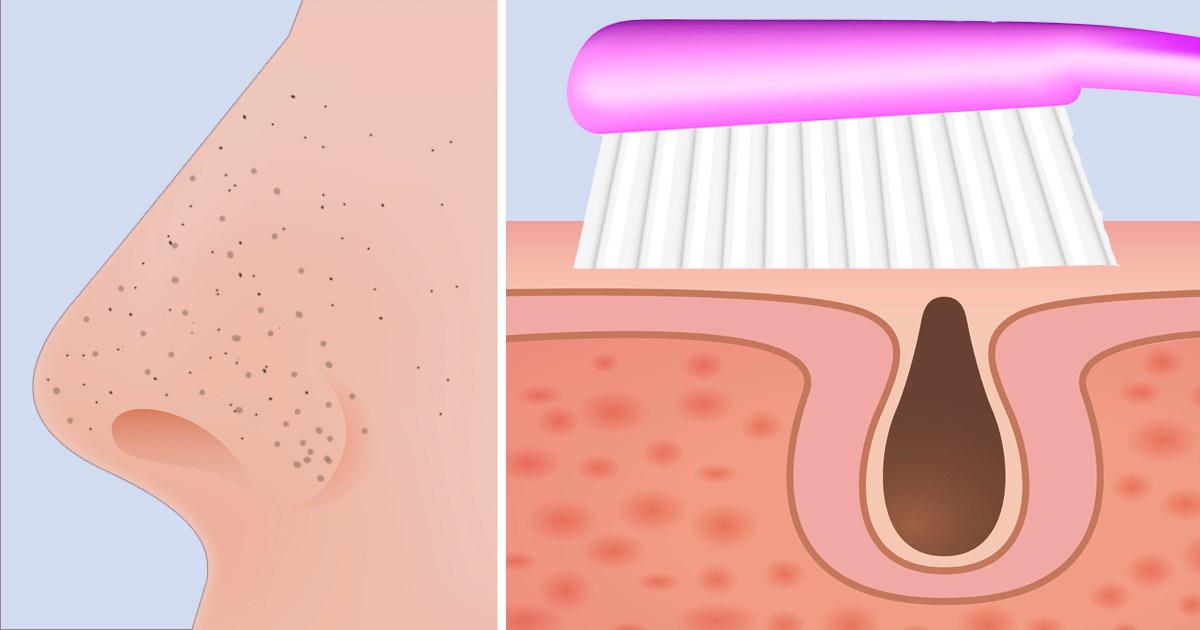 hur får man bort porer