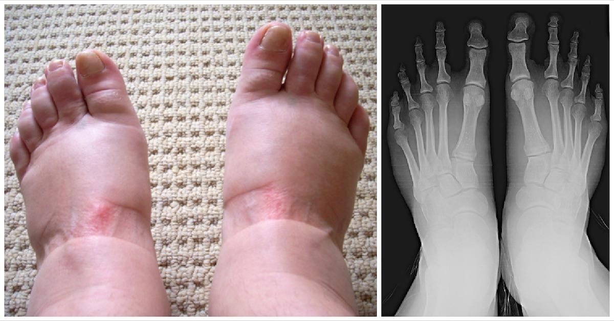 domningar i vänster ben och fot
