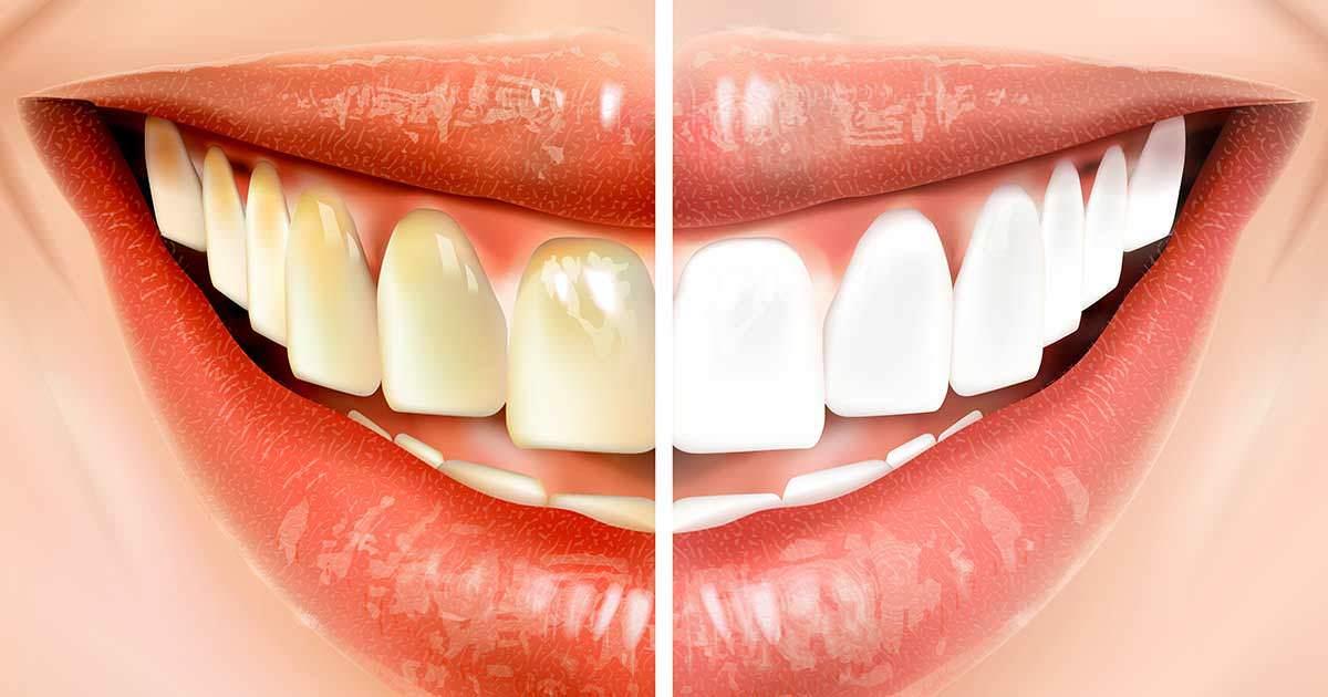 kokosolja bra för tänderna