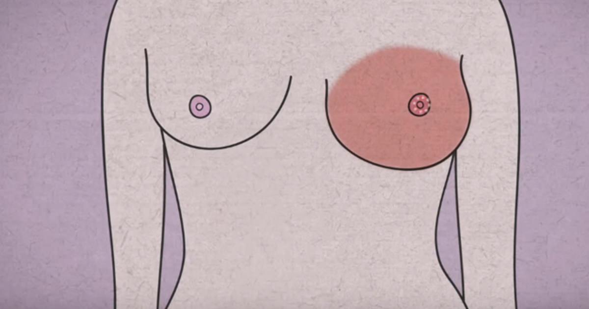 cysta i bröstet