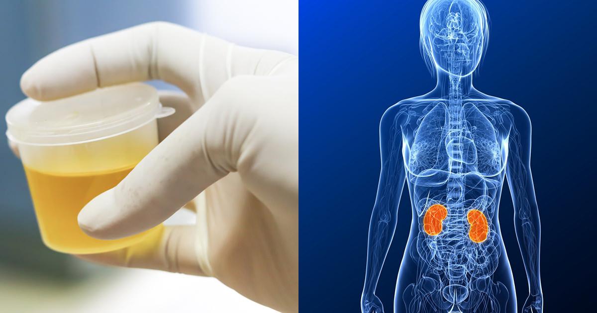 dåliga njurvärden symptom