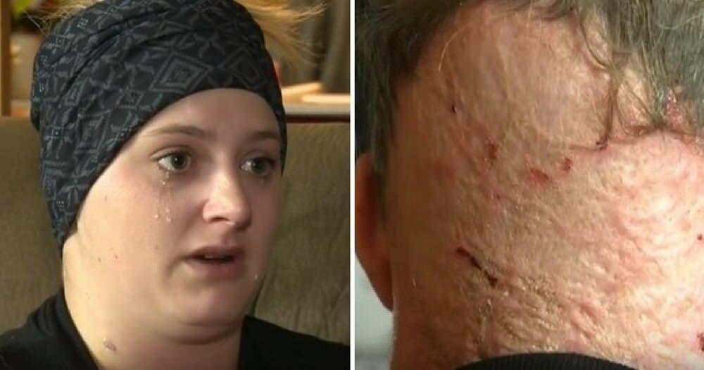 Ytterligare fall av missad hudcancer