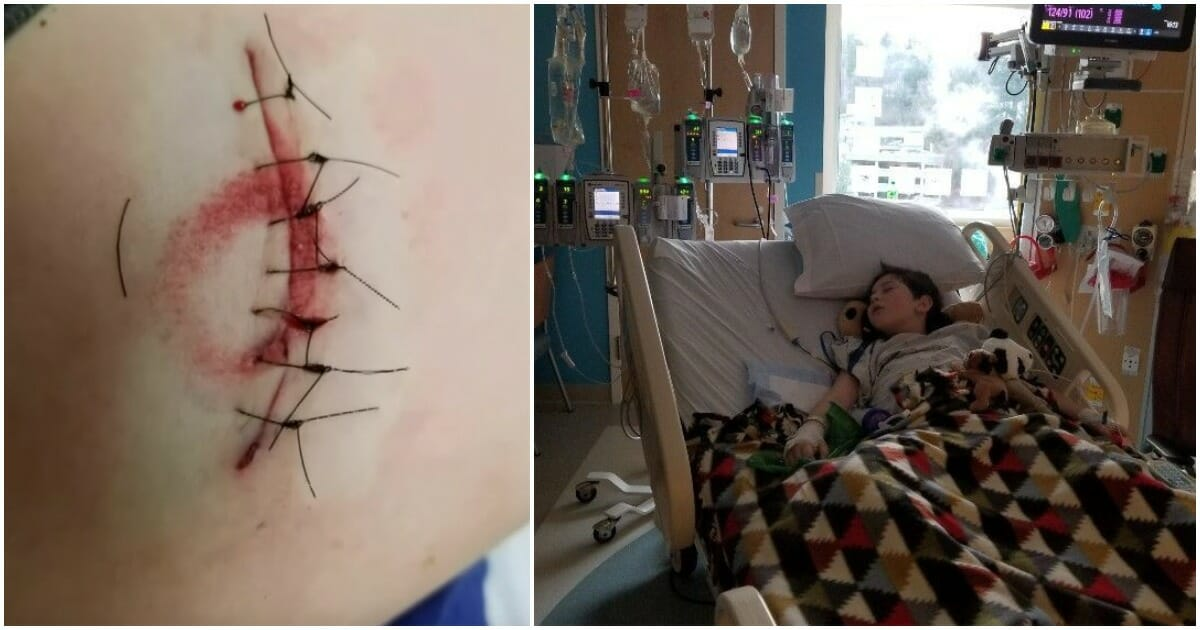 infekterat sår efter operation