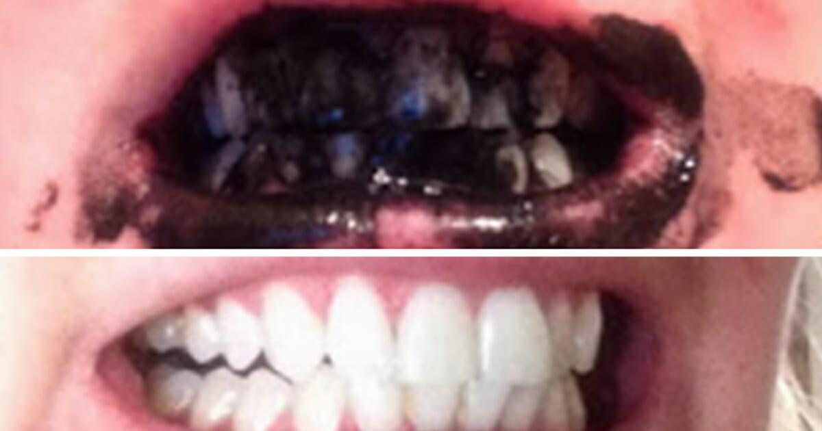 kol för tänderna
