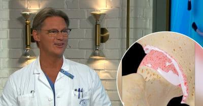 Doktor Mikael om artros