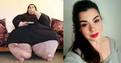 Po lewej stronie zdjęcie Amber przed kuracją, zaś po prawej stronie zdjęcie tego, jak wygląda obecnie