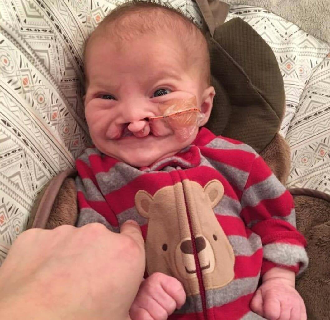 Na zdjęciu znajduje się mały Brody niedługo po urodzeniu