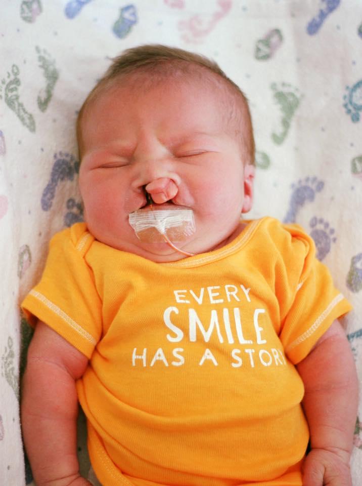 """Na zdjęciu znajduje się mały Brody niedługo po urodzeniu, w koszulce z napisem """"Każdy uśmiech ma swoją historię"""""""