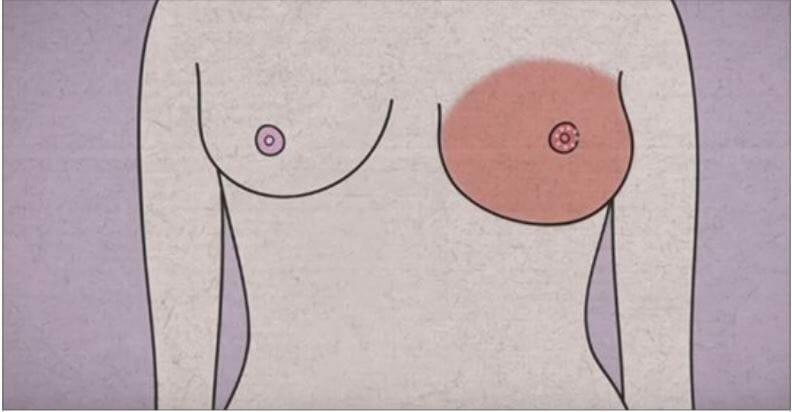 Ciało ostrzega Cię przed rakiem piersi - 5 objawów, których nie powinnaś ignorować