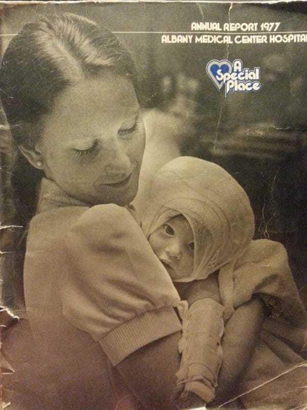 Obraz przedstawia jedno z czarno-białych zdjęć, na których pielęgniarka Susan opiekuje się poparzoną Amandą
