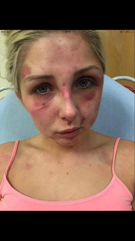 Na zdjęciu widać twarz pobitej Kelsie - dziewczyna jest cała w sińcach i ranach
