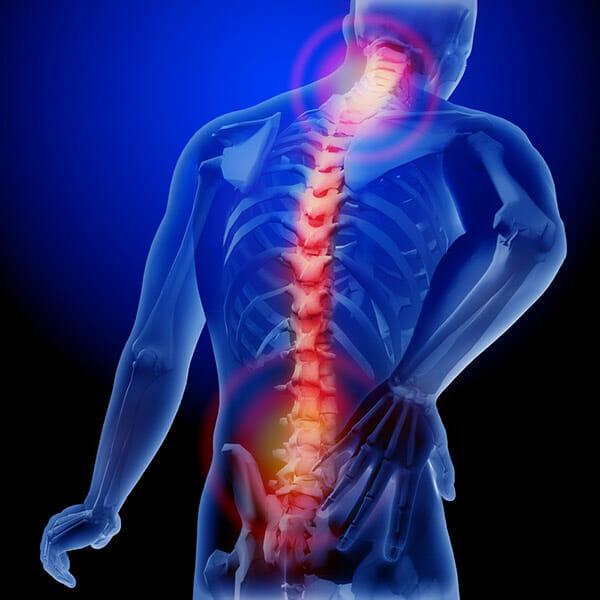 Grafika przedstawia model ludzkiego ciała, na którym wyraźnie zaznaczono kręgosłup