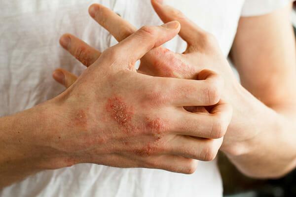 Na zdjęciu znajdują się dłonie osoby chorej na egzemę
