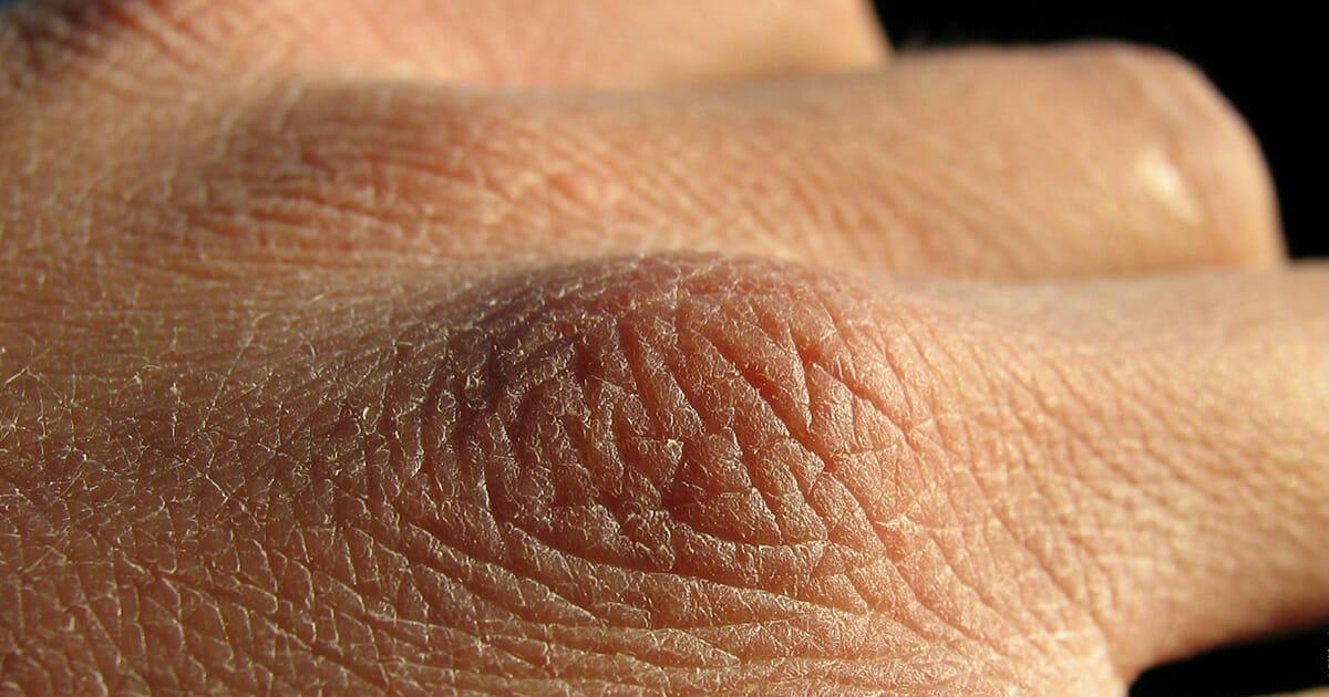 Na zdjęciu widać przesuszoną skórę dłoni