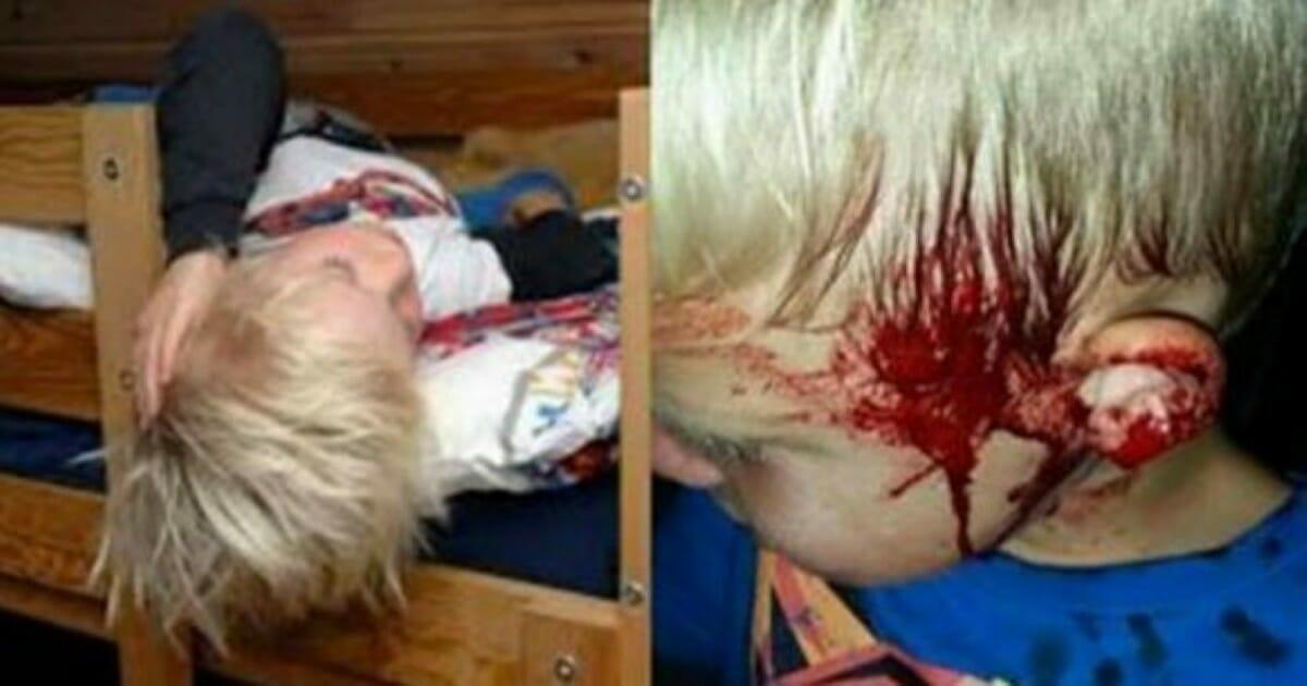 Krzyk syna wyrwał matkę ze snu - gdy zobaczyła jego twarz, natychmiast zadzwoniła pod numer alarmowy