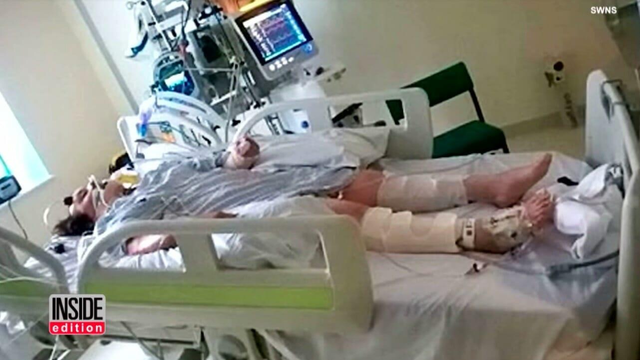 Osoba leżąca w szpitalu i podłączona do respiratora
