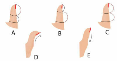 Wszystkie typy kciuków na jednej grafice