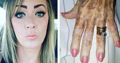 Grafika przedstawia dwa zdjęcia: po lewej Brandalyn, po prawej dłoń starszej kobiety z paznokciami pomalowanymi lakierem w różanym kolorze