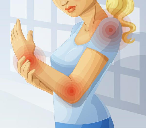 Rysunek kobiety, sugerujący że pulsują jej stawy (ramię, łokieć i nadgarstek)