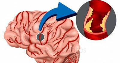 Grafika przedstawia mózg, oraz zakrzep tworzący się w jednym z naczyń krwionośnych organu