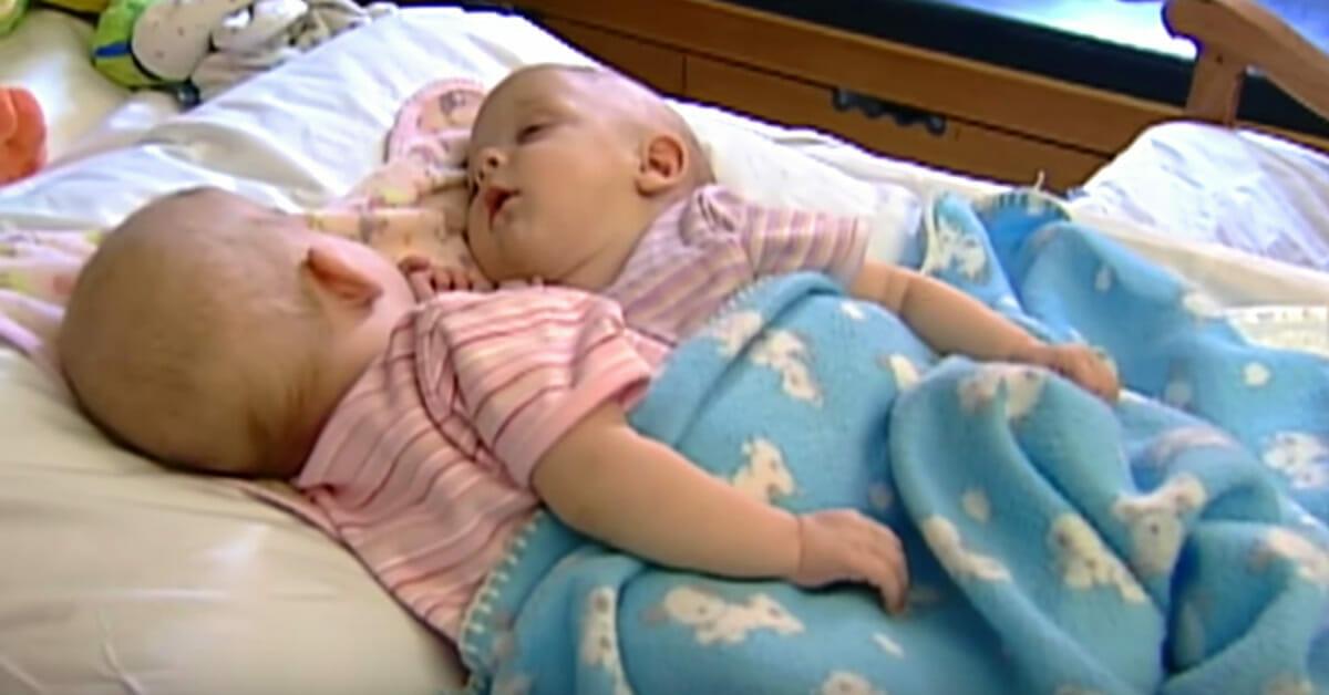 10 lat temu te bliźniaczki syjamskie zostały poddane skomplikowanej operacji rozdzielenia - zobacz jak dziś wyglądają