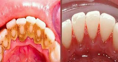 Grafika przedstawia dwa zdjęcia dolnej szczęki przedstawionych od wewnątrz jamy ustnej: po lewej zęby z kamieniem, po prawej czyste białe zęby