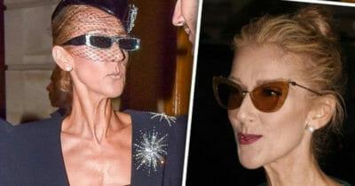 Dwa zdjęcia przedstawiające bardzo szczupłą twarz Celine Dion