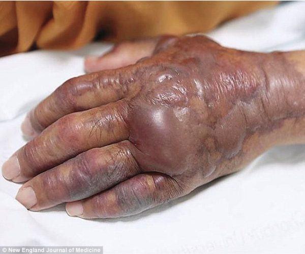 Opuchnięta ręka, zainfekowana bakterią z surowej ryby