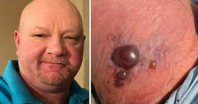 Grafika przedstawia dwa zdjęcia: po lewej Ricky Rutherford, po prawej objawy zakażenia bakterią, która żywi się mięsem