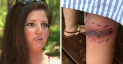 Grafika przedstawia dwa zdjęcia: Po lewej Kristine, po prawej ślad po ukąszeniu na nodze jej córki