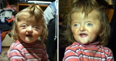 2-latka nie została przyjęta do przedszkola ponieważ jej zdeformowana czaszka mogłaby straszyć inne dzieci