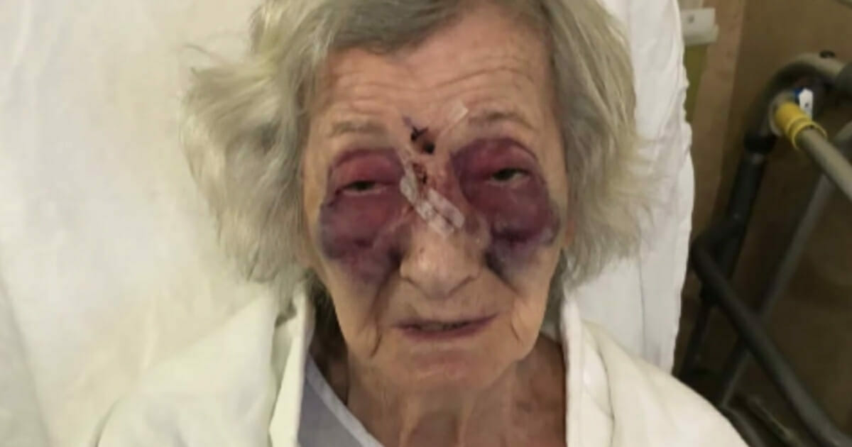 92-latkę brutalnie pobito podczas podróży busem dla osób starszych i niepełnosprawnych