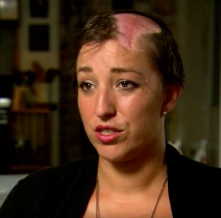 kobieta z wyrwanymi włosami na głowie