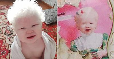 Siostry rodzą się z albinizmem 12 lat po sobie - tak wyglądają dzisiaj