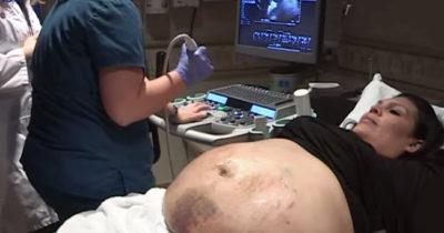 Ogromny brzuch kobiety w ciąży pokryty jest siniakami - kiedy lekarze widzą przyczynę, muszą uszczypnąć się w ramię