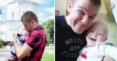 Mama porzuca dziecko urodzone z zespołem Downa - dumny ojciec sam je wychowuje