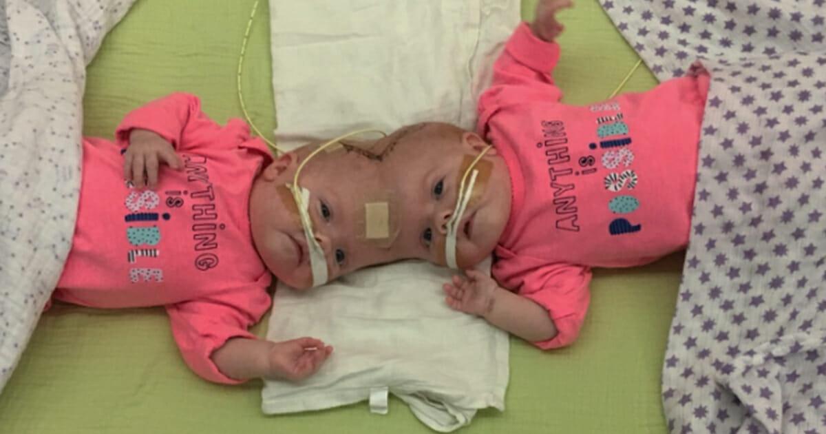 dzieci zrośnięte głowami w różowych ubrankach