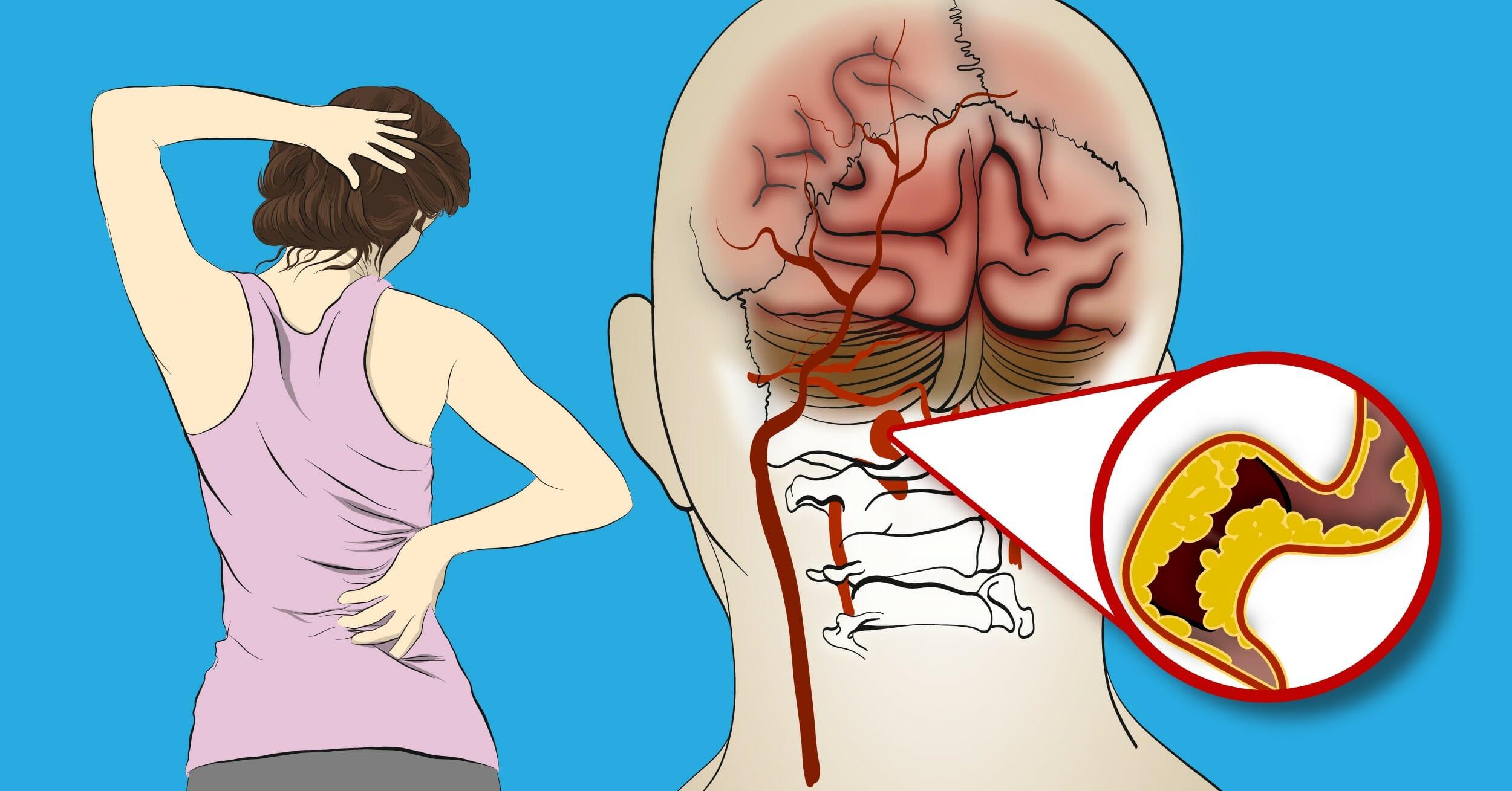hjerneslag symptomer kvinner