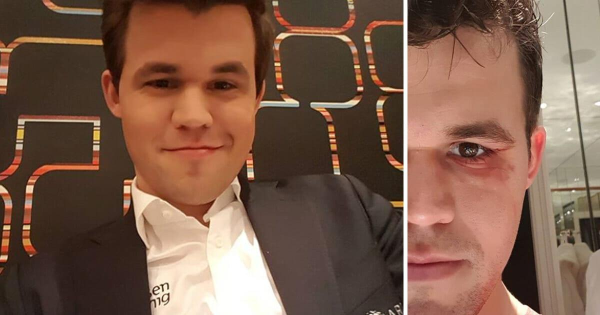 Magnus Carlsen Skadet Fikk Nadelos Beskjed